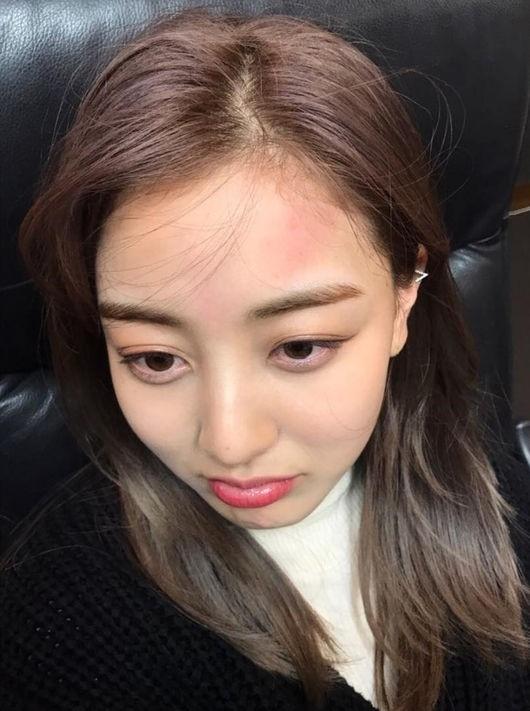 TWICE ジヒョ、赤くなった額にファンも心配!?\u201cジョンヨンと何があったの\u201d , ENTERTAINMENT , 韓流・韓国芸能ニュースはKstyle